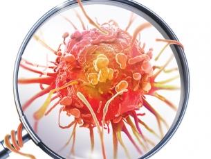 Aprovado novo tratamento contra dois tipos agressivos de câncer