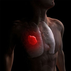 Câncer de pulmão: Brasil é pioneiro em aprovar nova indicação de terapia
