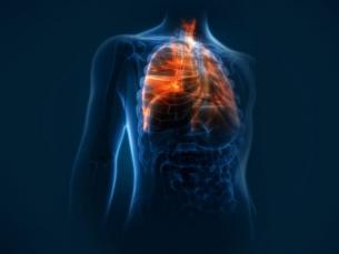 Radiocirurgia é eficaz contra câncer de pulmão, diz estudo brasileiro