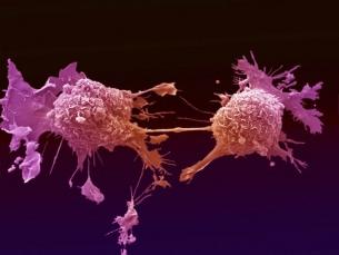 Mutações do câncer vivem em células saudáveis