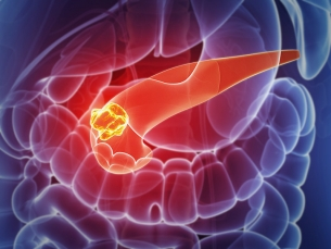 A cirurgia que é nova esperança contra o câncer de pâncreas, um dos mais letais