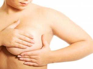 Teste de câncer de mama pode prever chances de retorno da doença 20 anos depois, mostra estudo