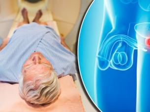 Câncer de próstata: novos tratamentos dão maior sobrevida ao paciente em caso de metástase