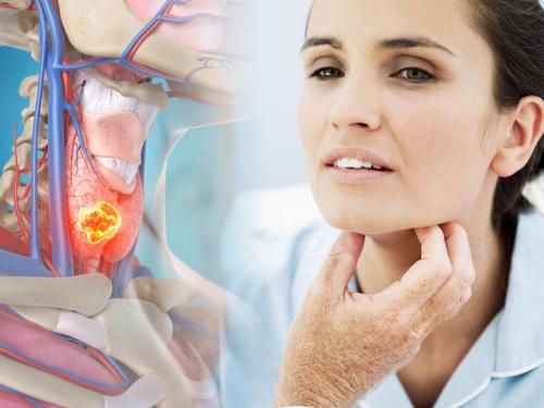 Maioria detecta câncer de cabeça e pescoço em estágio avançado