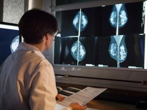 Diagnóstico de câncer no Brasil é realizado de forma tardia