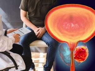 Tratamentos de câncer de próstata são menos invasivos e mais eficazes