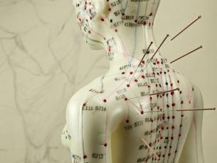 Acupuntura pode aliviar as dores do câncer, segundo revisão de estudos