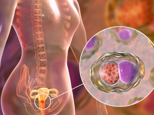 Ginecologista alerta para alto número de casos de câncer de colo de útero