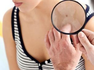 5 mitos sobre o câncer de pele