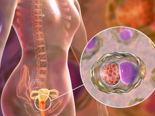 OMS cria metas para eliminar o câncer do colo de útero.